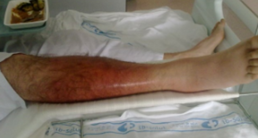 How my leg looked after the infection spread