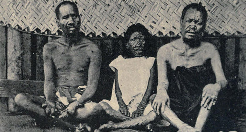 Leprosy sufferers in Tahiti in 1898 [Via: Wikipedia Commons]